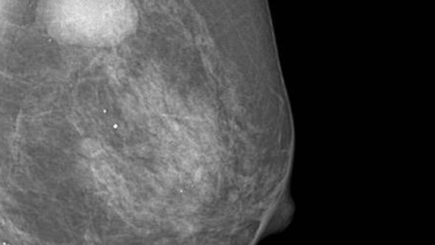 tomosynthesis mammography Cms updates mammography guidelines for 2018 share cpt code 77063 is an add-on code describing screening digital tomosynthesis for mammography.