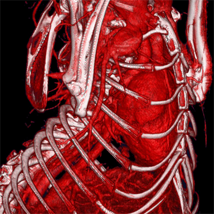 MicroCT of heart & vasculature using nanoparticle contrast agent. Imaged on the Quantum GX2 microCT system