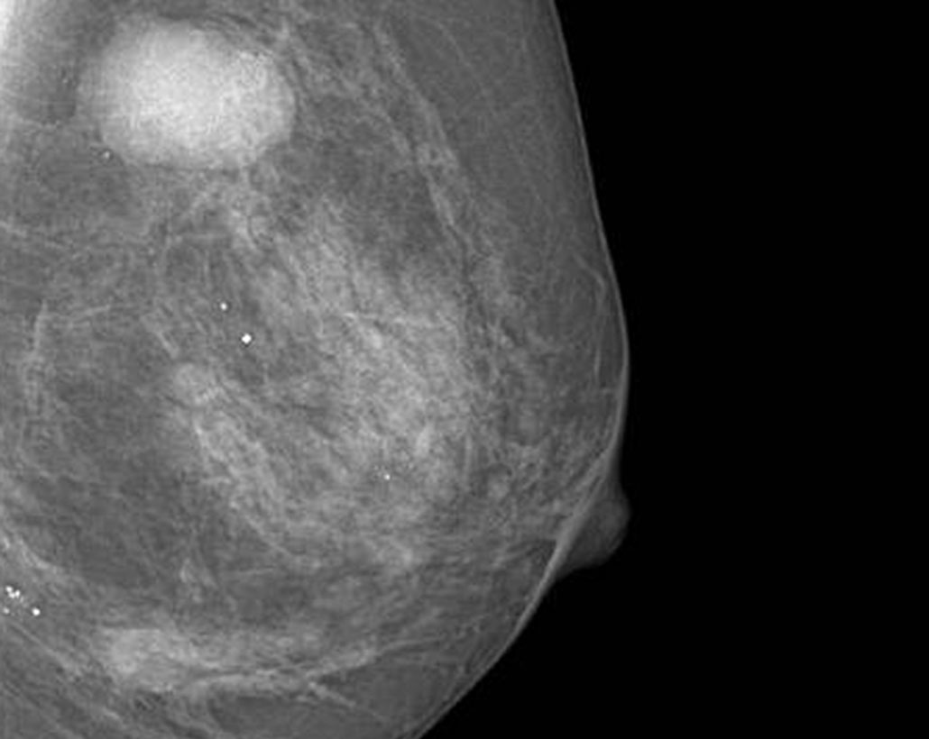 Dexela Mammography and Tomosynthesis