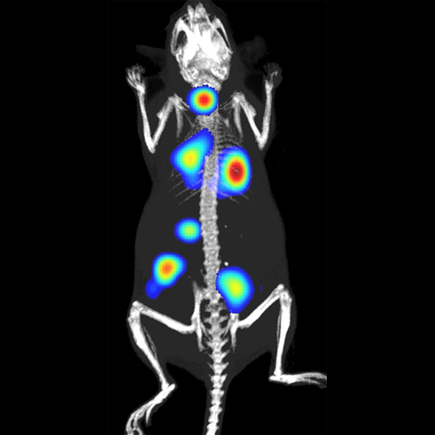 Cancer metastasis in mouse model using Bioware bioluminescent cells