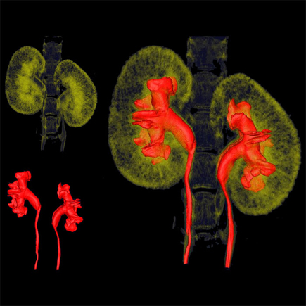 Iodine-based contrast microCT imaging of kidneys using the Quantum GX2 system