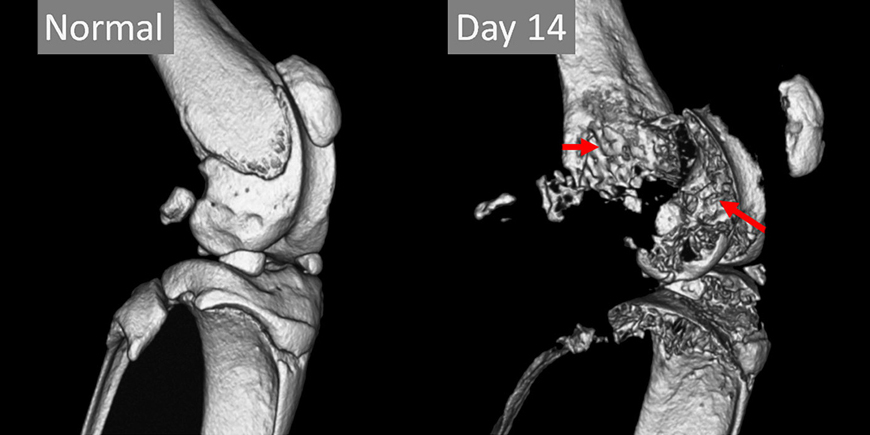 MicroCT of extensive bone erosion in mouse knee. Imaged using the Quantum GX2 scanner