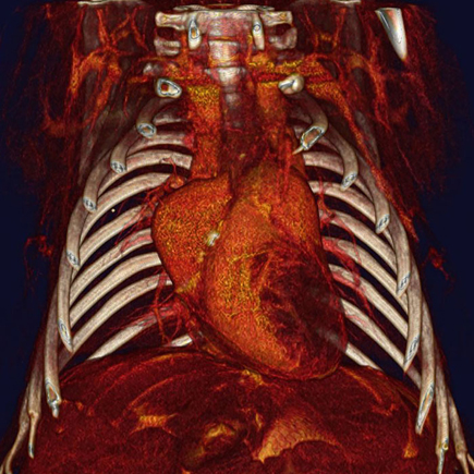 Vascular contrast microCT of chest using the Quantum GX2 system